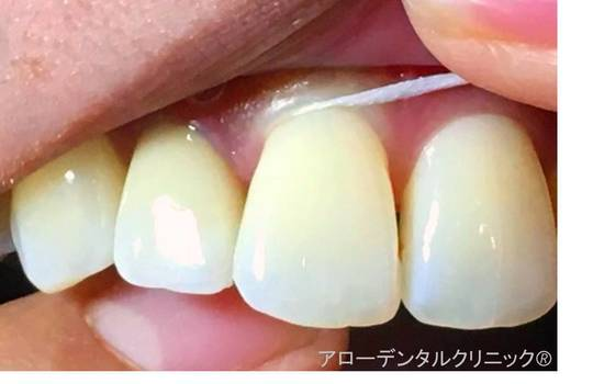 間 臭い 歯 フロス